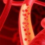 Хотите проверить уровень холестерина?
