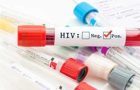 28 октября в Вязьме пройдет тест на ВИЧ