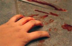 В Туманово порезали женщину